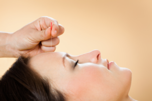 how acupuncture help to body